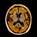 Alcoholic dementia can be treated with professional help.
